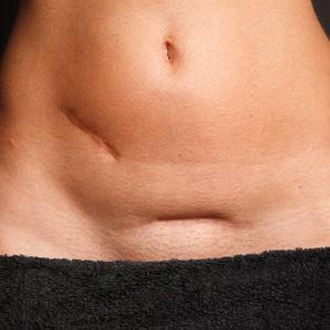 Bauch einer schlanken Frau mit 2 Narben